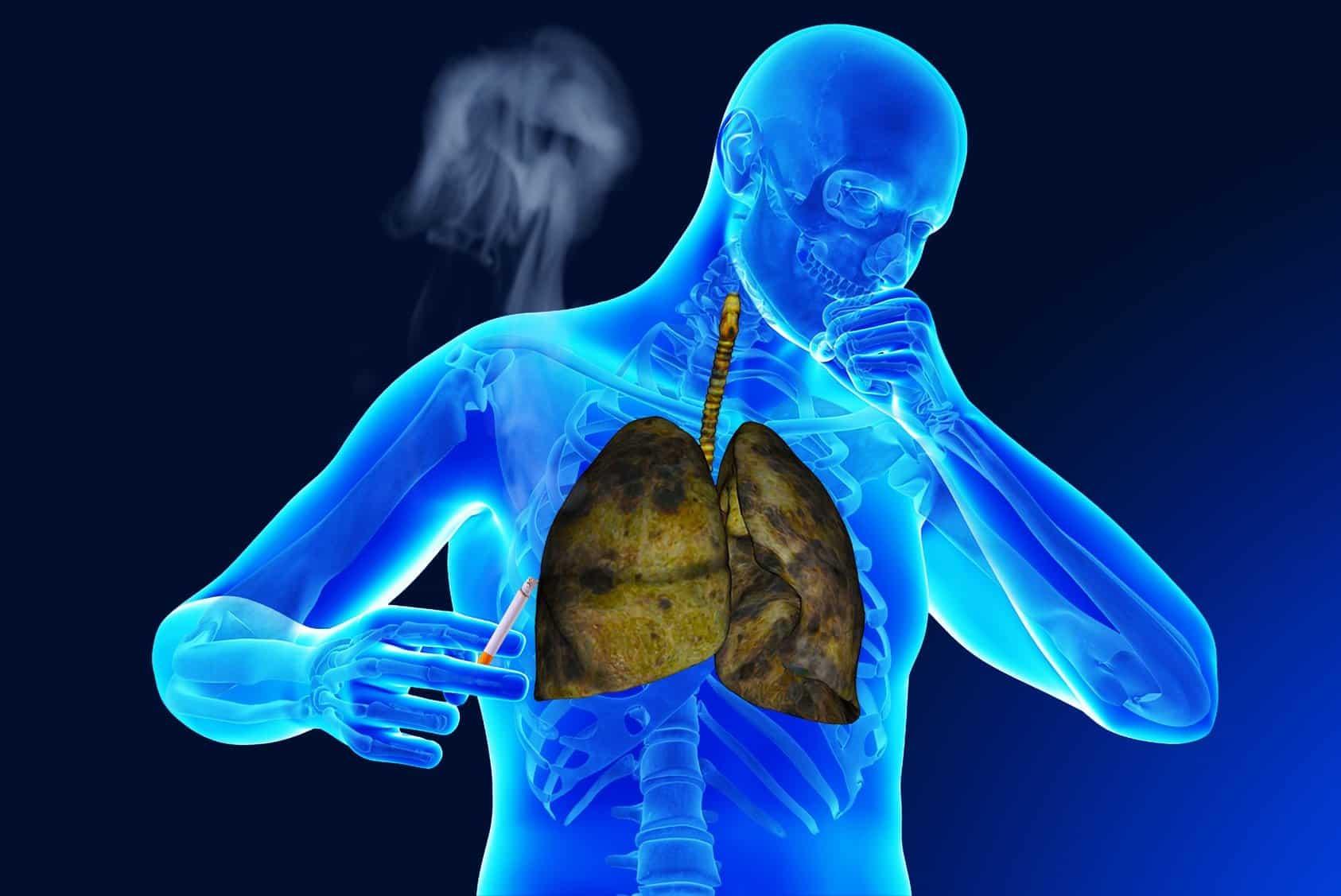 Симптомы бронхита у взрослых