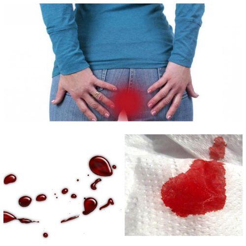 Сильное ректальное кровотечение