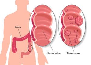Гонококковый артрит и анальная гонорея