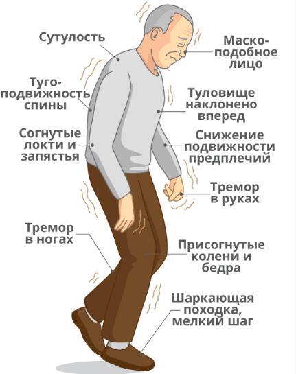 Болезнь Паркинсона симптомы, диагностика и методы лечения
