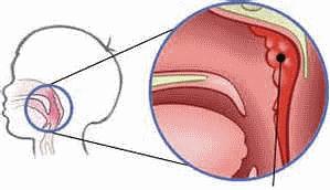 Атеросклероз сосудов головного мозга симптомы и лечение у пожилых людей