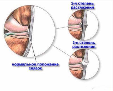 3 стадии растяжения связок запястья