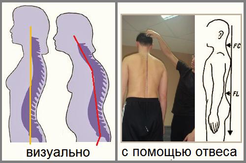 Классификация переломов (пояснения ниже в тексте)