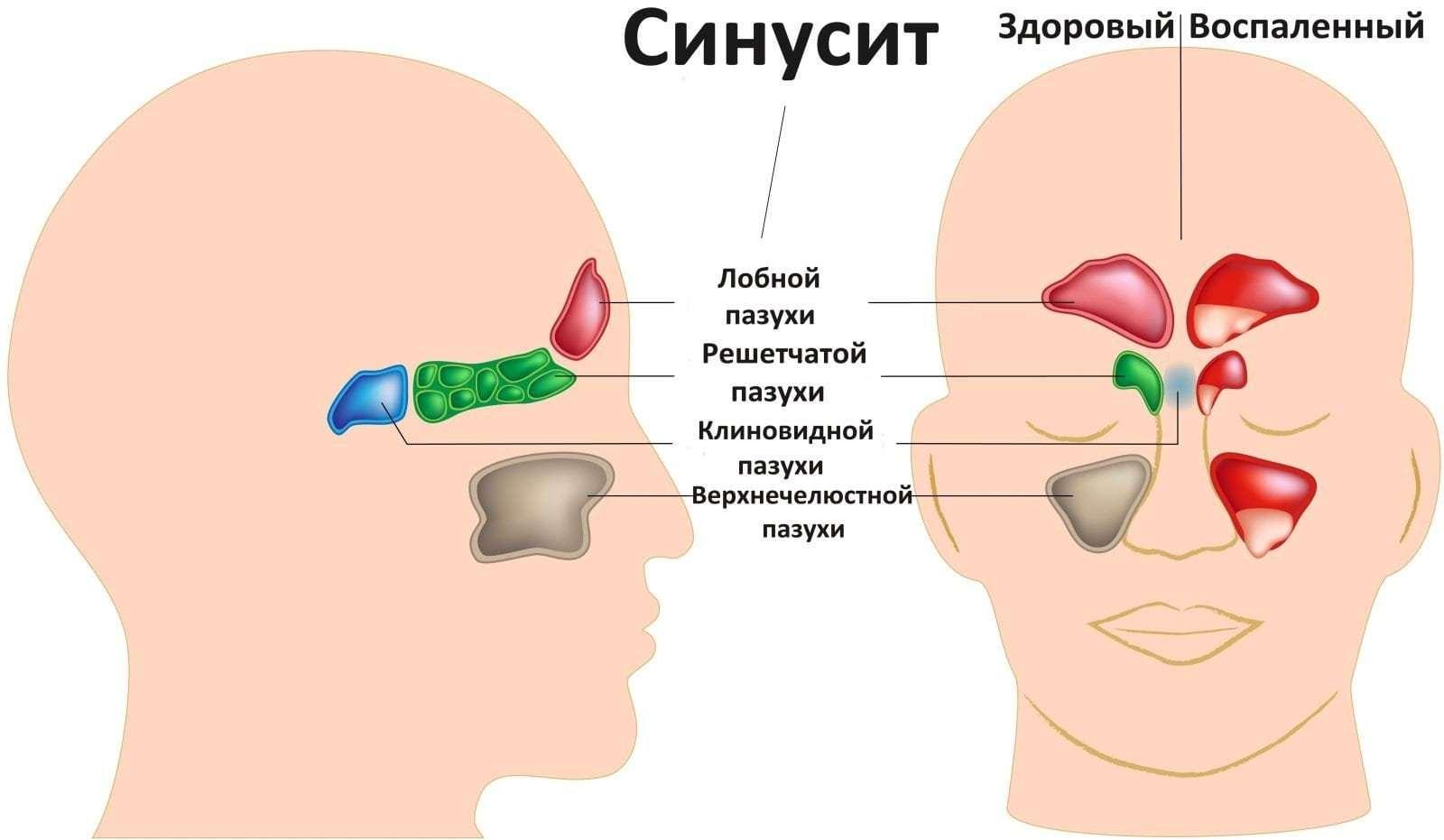 Синусит: симптомы и лечение в домашних условиях