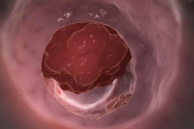 Симптомы рака прямой кишки 4 стадии. Прогнозы: сколько с этим живут?