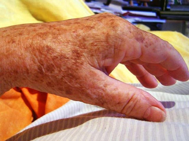 Разновидности старческих пигментных пятен на коже. Причины появления и способы их устранения
