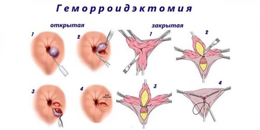 Гемарроидэктомия