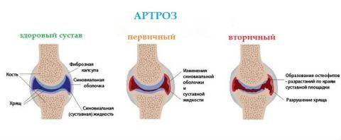 Анатомические особенности артроза