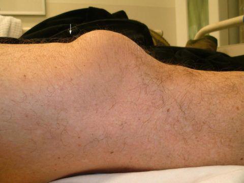 Аномальное расположение надколенника из-за разрыва сухожилия четырехглавой мышцы.
