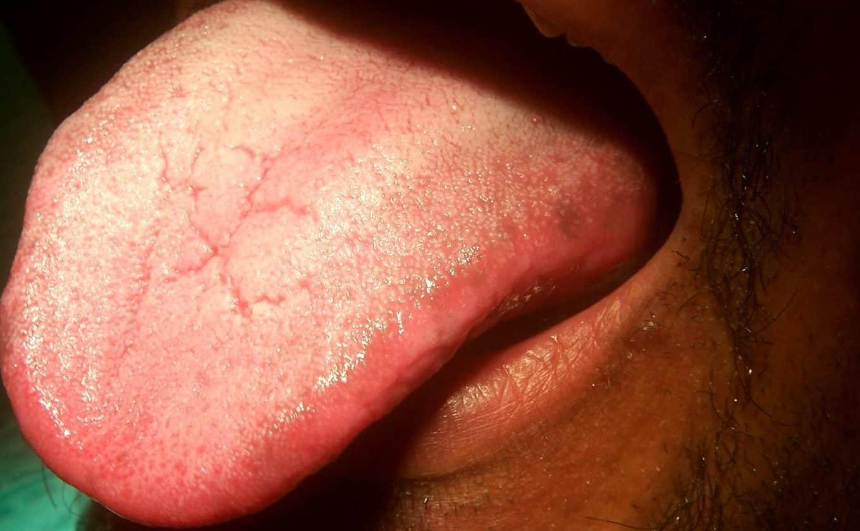 Причины синусита