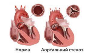 От чего возникает аритмия?