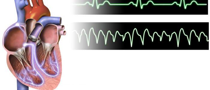 Блокада сердца и аритмия