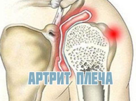 Артрит плеча также способствует ухудшению трофики суставных тканей и повышает риск их травмирования.