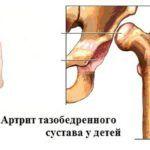 Артрит у малышей может вызывать изменения в суставных тканях, отсюда и будет «эффект похрустывания» сочленений.