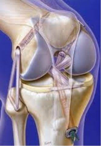 Артродез колена чаще всего ставится деформирующем артрозе последней стадии.