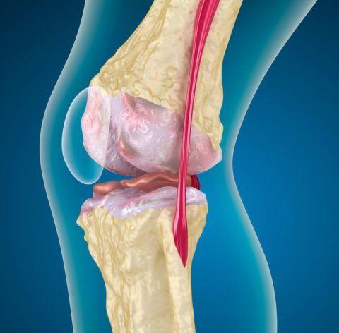 Артроз колена нередко приводит к инвалидности