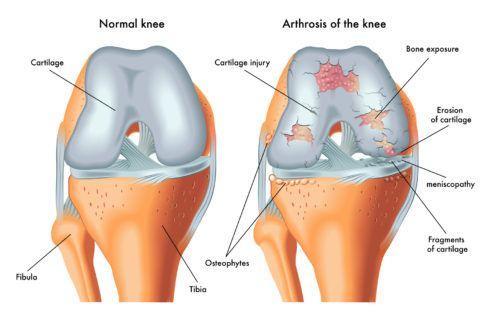 Артроз коленного сустава 1 степени развивается из-за разрушения хряща