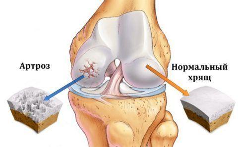 Артрозом коленей страдают многие люди. Поэтому важно знать, что это за заболевание и как его лечить.