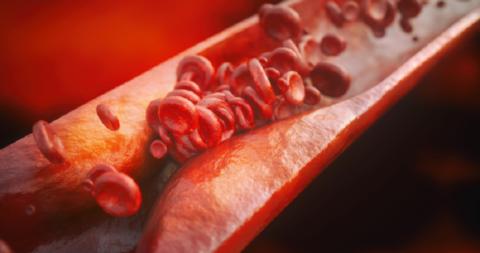 Атеросклеротическое сужение сосудистого русла позвоночной артерии