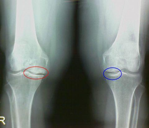 Боль в коленном суставе – показание для рентгенологического обследования