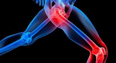 Боль в суставах – основной симптом при остеоартрозе.