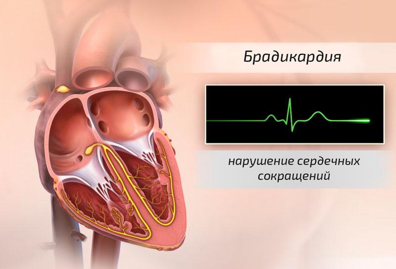 Ауробин передозировка