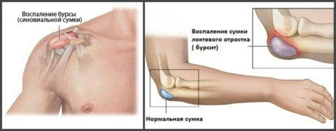 Бурсит плеча и локтя могут появиться одновременно и прогрессировать