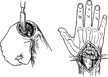 Чаще всего артродез лучезапястного сустава применяют при неправильно сросшихся переломах.