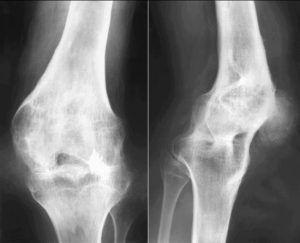 Частичные изменения в суставных тканях дают тугоподвижность сочленений, но не приводят к полной обездвиженности.