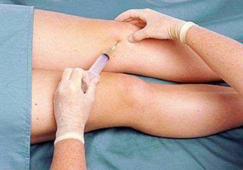 Часто терапия острого воспаления колена включает курс внутрисуставных инъекций.