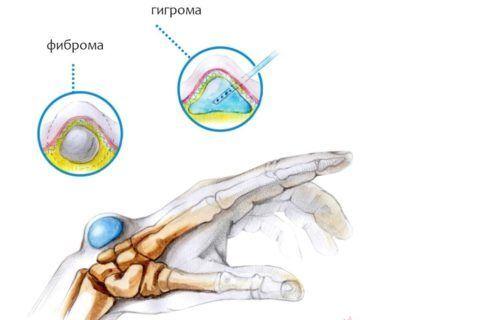Что такое гигрома сустава?