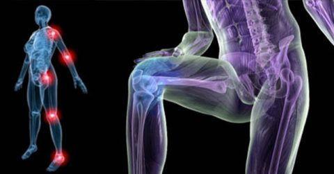 Что такое ревматизм суставов?