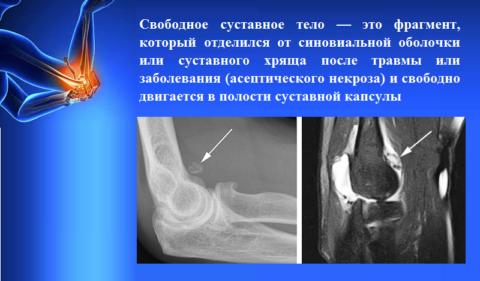 Что такое свободное суставное тело (болезнь Кенига, рассекающий остеохондроз, суставная мышь)