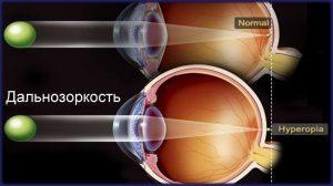 Чем отличается открытоугольная глаукома от закрытоугольной?