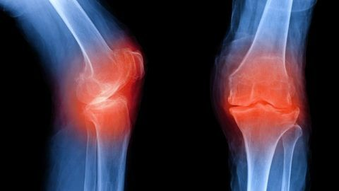 Даже не опасное заболевание может провоцировать появление сильной боли