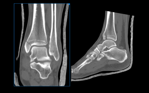 Диагноз артрита ставят на основании рентгенологического обследования