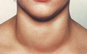 Аритмия и ком в горле