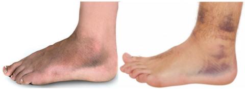 Диффузное распространение кровоизлияния и ограниченные гематомы