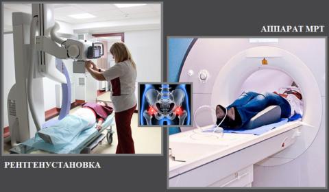 Длительность рентгена: 7–10 минут (лучевая нагрузка: 1,57–2,23 мЗв), МРТ: 30–60 минут.