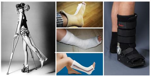 Для жёсткой иммобилизации места перелома могут применяться различные материалы