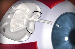 Оперативное лечение глаукомы