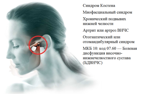Другие названия дисфункции височно-нижнечелюстного сустава и ее код В МКБ-10