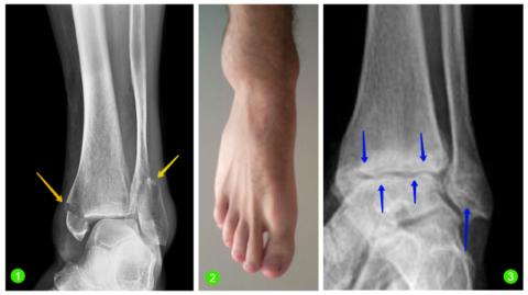 Двух-лодыжечный перелом (1), фиброма наружной щиколотки (2), остеоартроз голеностопа (3)