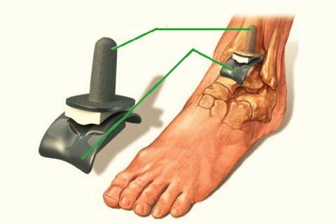 Эндопротезирование сустава – единственный способ лечения ДОА 3 стадии