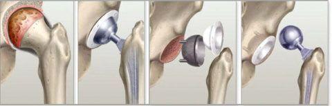 Эндопротезирование сустава при запущенном заболевании – единственный способ вернуть больного к полноценной жизни.