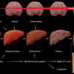 Энцефалопатия печени