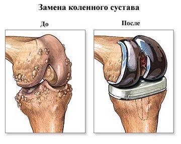 Если сустав был разрушен заболеванием, то производят его замену и вставляют эндопротез.