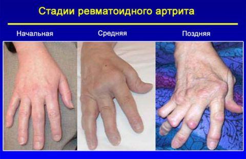 Формирование анкилозов на последней стадии заболевания