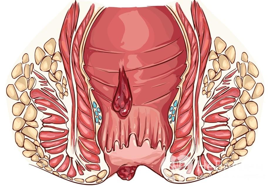Геморроидальная болезнь