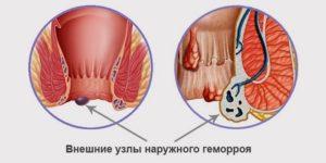 Геморроидальные уплотнения